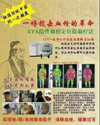祖国传统中医的一次颠覆 一场抗击血栓的革命