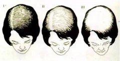 女性为什么也会得雄性激素源性脱发?