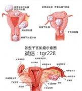 "<b>有了清宫妇健汤,再也不用躺在""卵巢囊肿""冰冷的手术台上了!</b>"